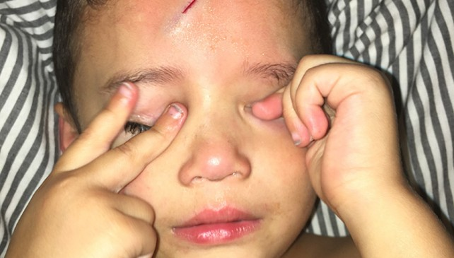 Mom Turns Crying Kid's Cut Into Harry Potter Lighting Bolt To Make Him Happy.