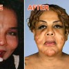 transgender-injected-cement