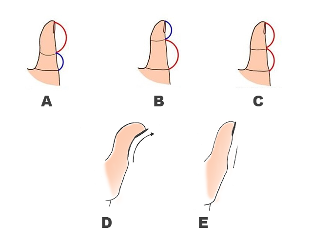 read how your thumb reveals your personality traits