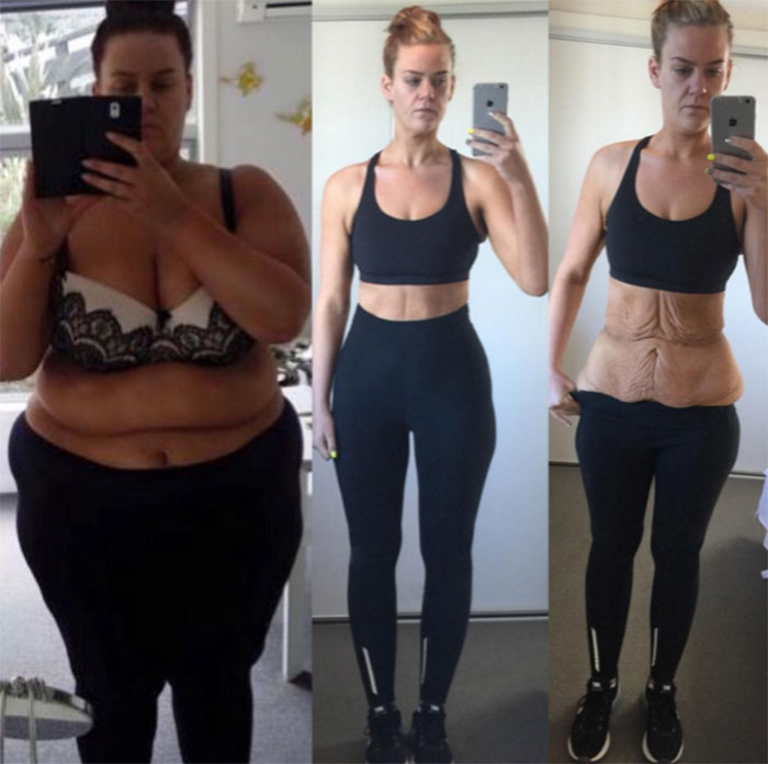 this-new-zealand-woman-lost-over-200-pounds-and-shared-her-journey2