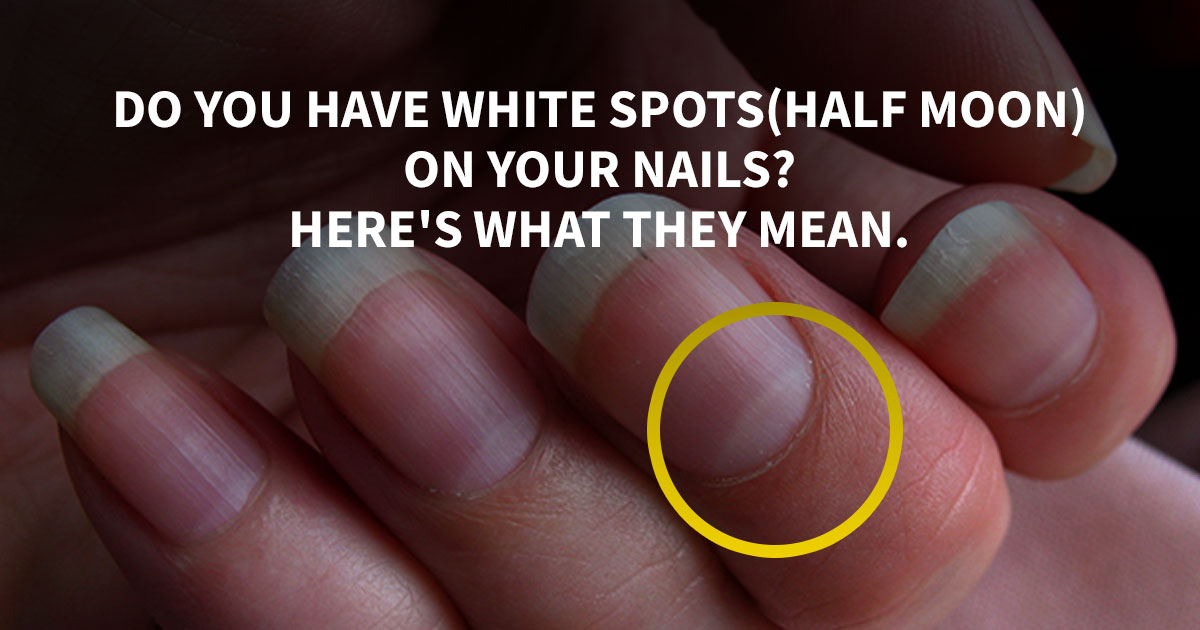 Do You Have White Spotshalf Moon On Your Nails Heres What They Mean